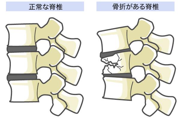 腰椎 圧迫 骨折 腰椎圧迫骨折の特徴とは?